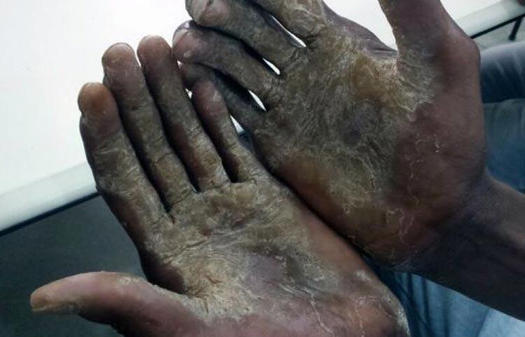 MPT aponta 21 pessoas resgatadas de trabalho escravo na Bahia em 2019