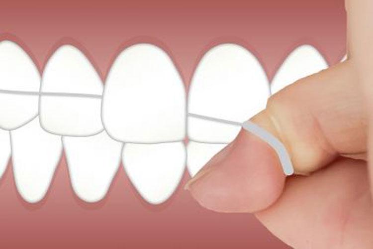 Estudo sugere que fio dental possui substância tóxica que pode causar até câncer