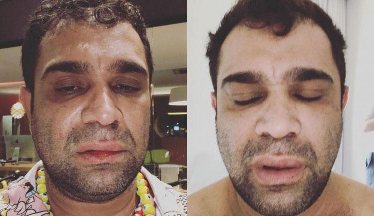 Humorista registra queixa por homofobia após agressão em show