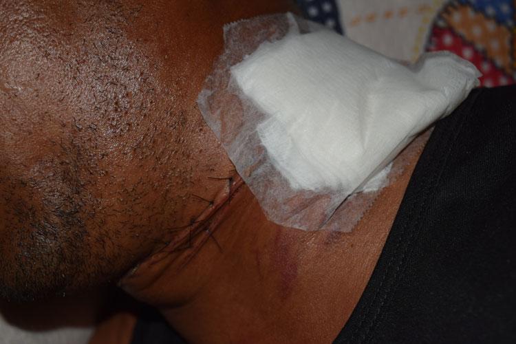 Brumado: Servidor público tem pescoço cortado por linha de pipa com cerol