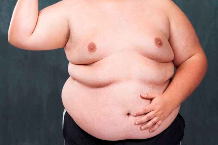 Coronavírus: Mortalidade é 10 vezes mais alta em países onde maioria é obesa, diz estudo