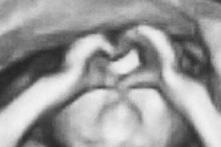 Ultrassom revela bebê fazendo coração com as mãos