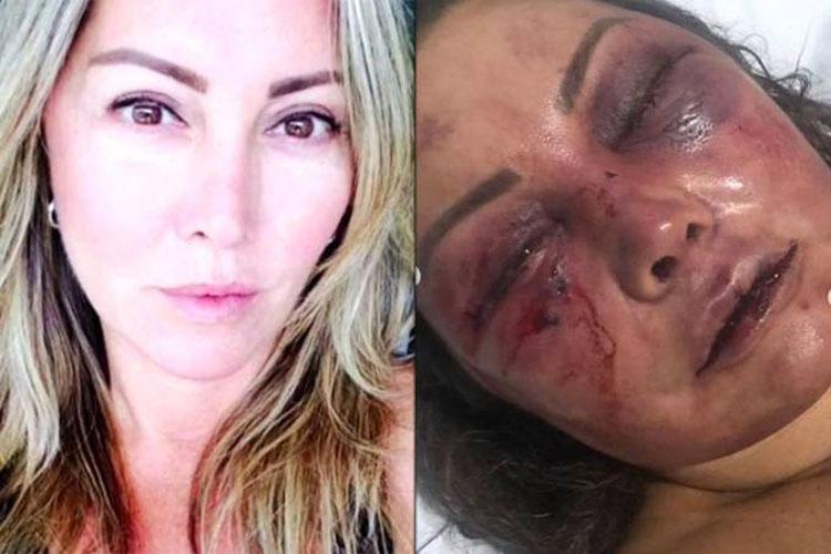 Rio de Janeiro: Mulher é espancada por 4 horas durante primeiro encontro