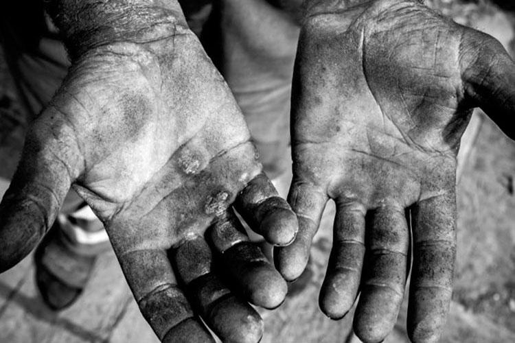 Vitória da Conquista: STF mantém condenação de fazendeiro por trabalho escravo