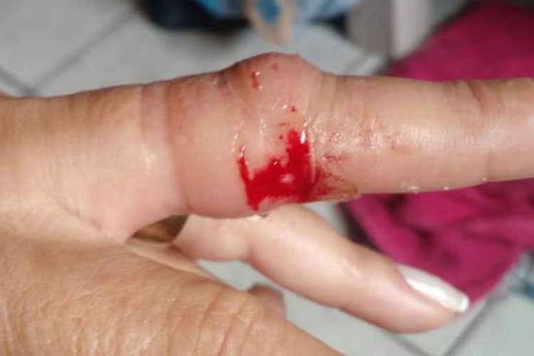 Assaltante arranca aliança de mulher com a boca no interior da Bahia
