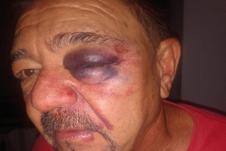 Rio do Pires: Servidor público é agredido na secretaria de saúde por colega após discussão sobre Bolsonaro e Lula