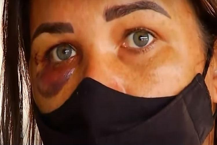 Mulher de Livramento de Nossa Senhora é perseguida e agredida ao pedir para cliente colocar máscara