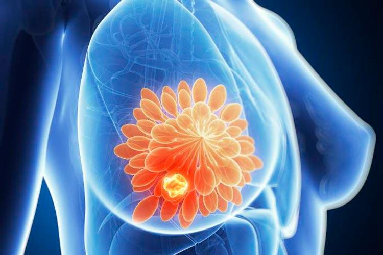 Tratamento para câncer de mama adia quimioterapia por até 4 anos