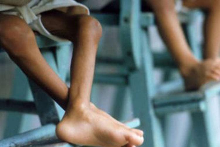 Desnutrição e sobrepeso afetam uma em cada três crianças no mundo, revela Unicef