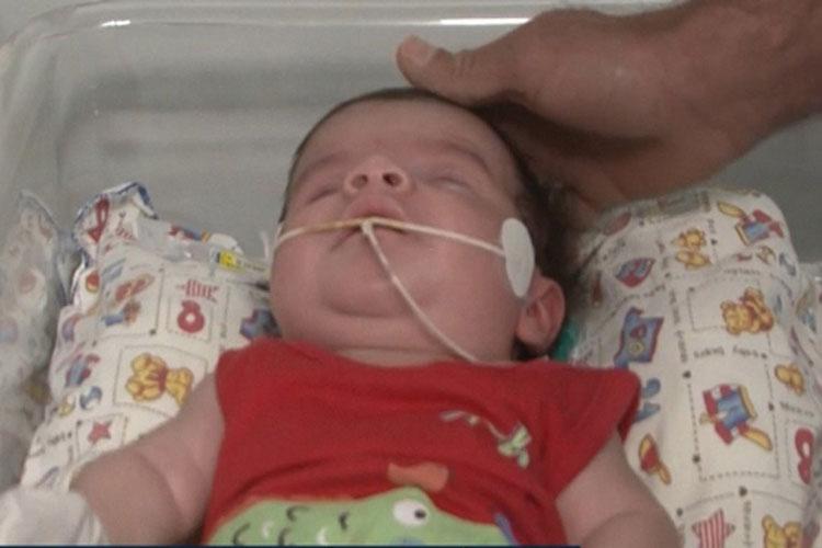 Tanhaçu: Com síndrome rara, bebê aguarda transferência para hospital especializado em neurocirurgia pediátrica