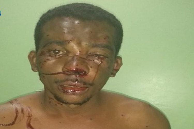 Homem tenta matar o próprio irmão com tiro de espingarda em Palmas de Monte Alto