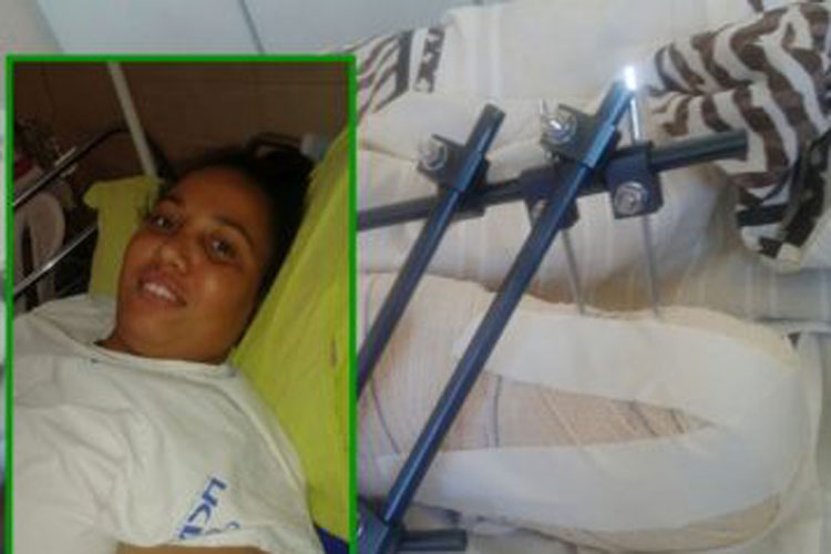 Livramento: Mulher sofre fratura durante jogo de bola com os filhos e tem perna amputada