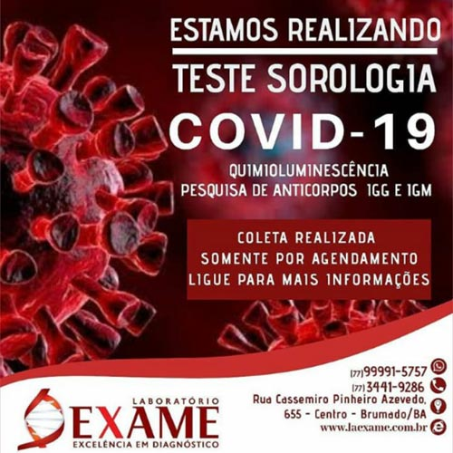 Laboratório Exame realiza teste de sorologia para Covid-19 através de agendamento em Brumado