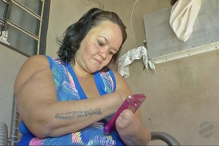 Com mãos decepadas por marido, mulher não consegue trabalho